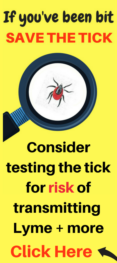 Link to lab that will test a tick for risk of carrying and transmitting lyme disease and coinfections